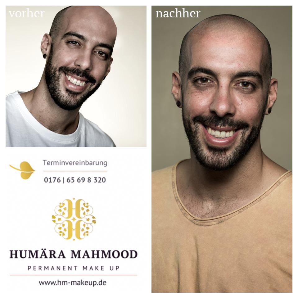 Kopfhautpigmentierung